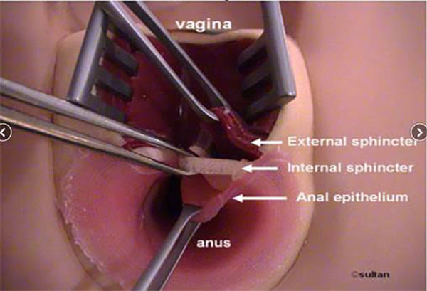 Anal internal sphincter